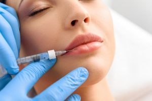 woman getting juvederm lip filler injections